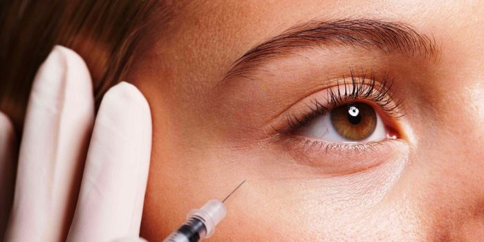 The Facts and Fiction of Botox